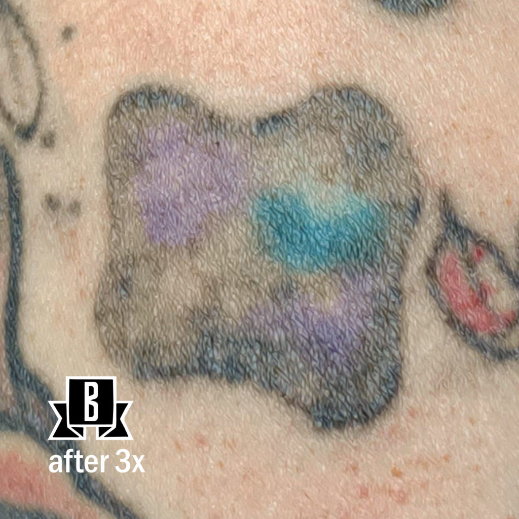 tattoo removal three treatments